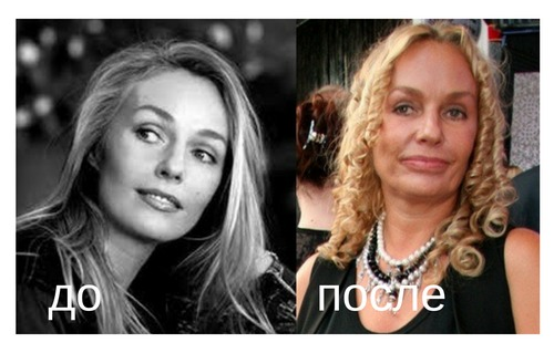 Андрейченко до и после увеличения губ