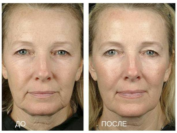 увеличение губ процедурой термаж до и после