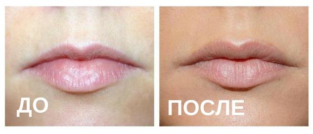 Увеличение губ: до и после