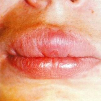 отек Квинке с проявлением на верхней губе фото