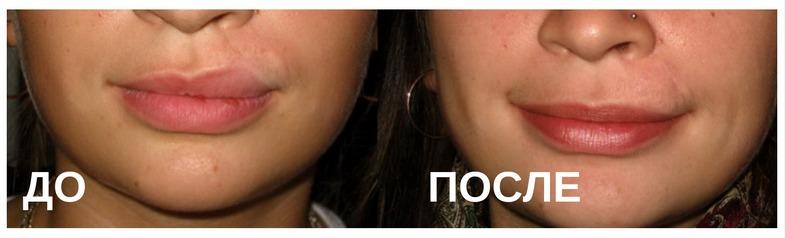 Изменение формы губ: до и после