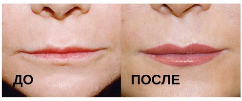 Увеличение тонких губ: до и после