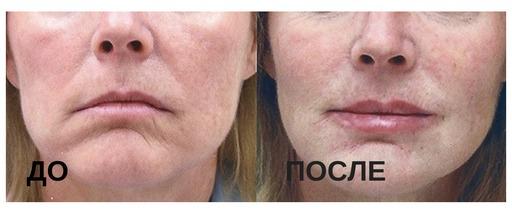Исправление опущения уголков рта: до и после