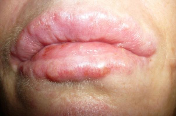Неровности после увеличения губ