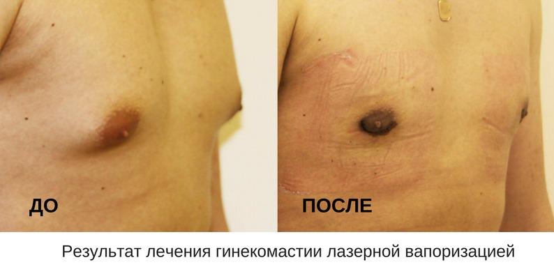 до и после лечения гинекомастии лазерной вапоризацией