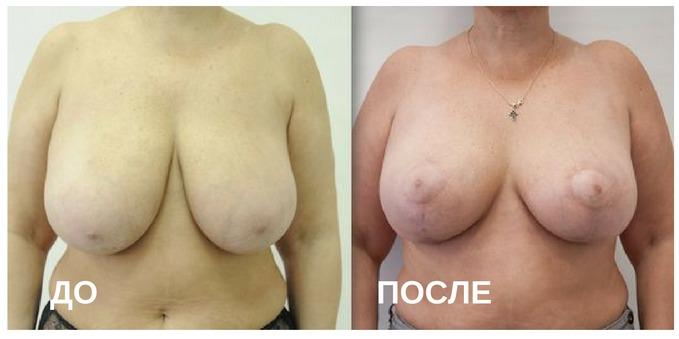 до и после операции по исправлению опущения молочных желез