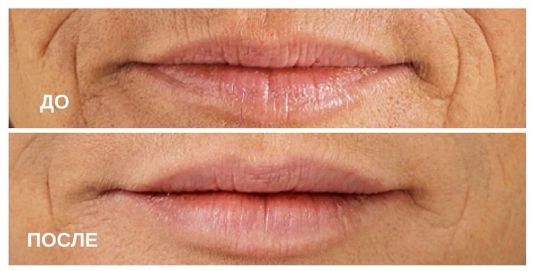 омоложение кожи губ