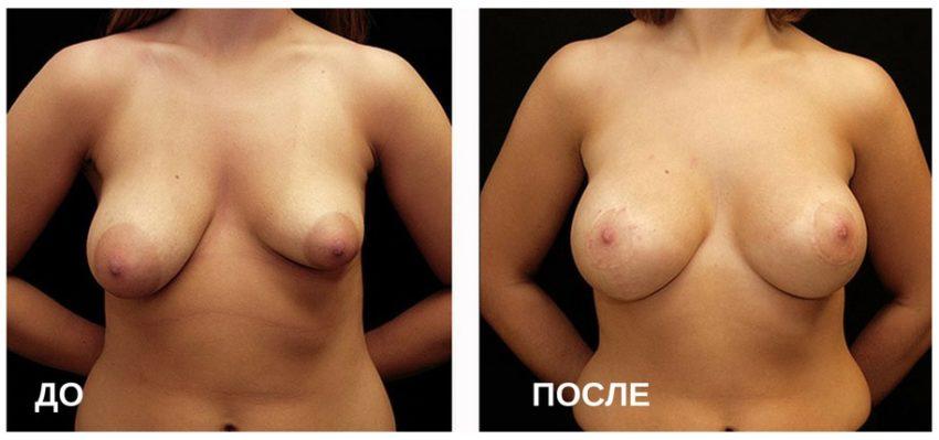 коррекция асимметричной груди