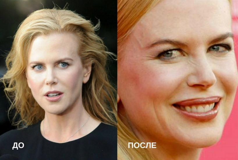 николь кидман до и после увеличения губ