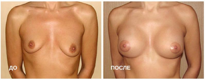 до и после пластической операции по увеличению груди