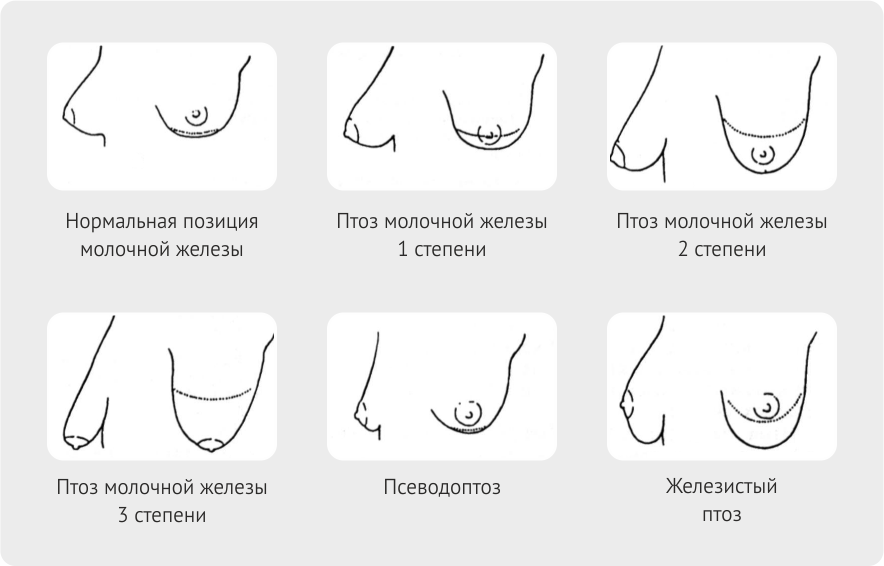 птоз груди: классификация