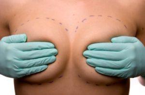чем увеличить грудь?