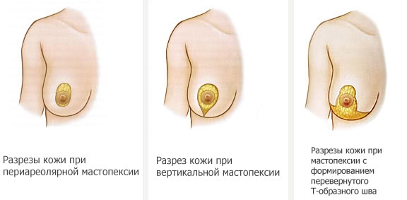 виды разрезов при мастопексии