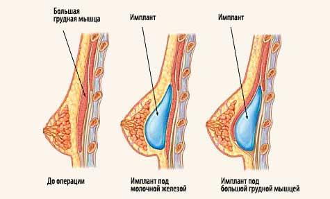 установка импланта при асимметричной груди