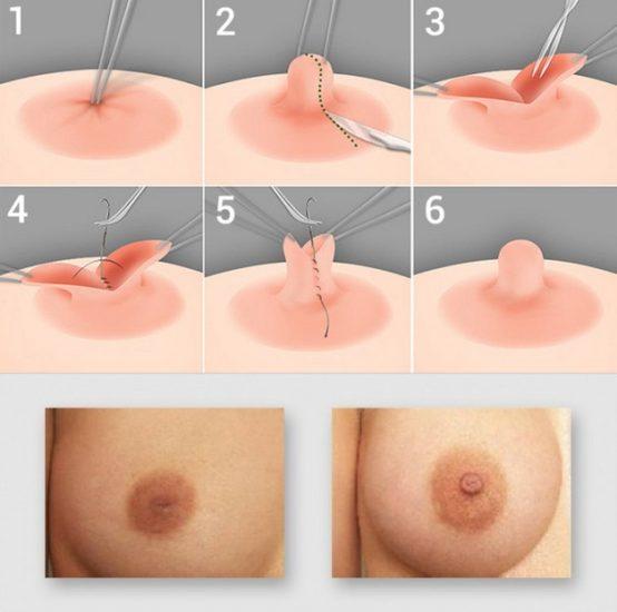 пластика соска при асимметричной груди