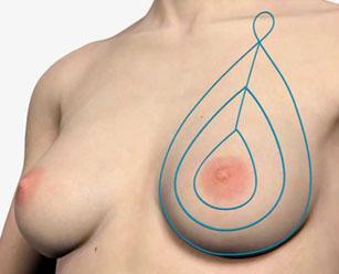 нитевой лифтинг груди