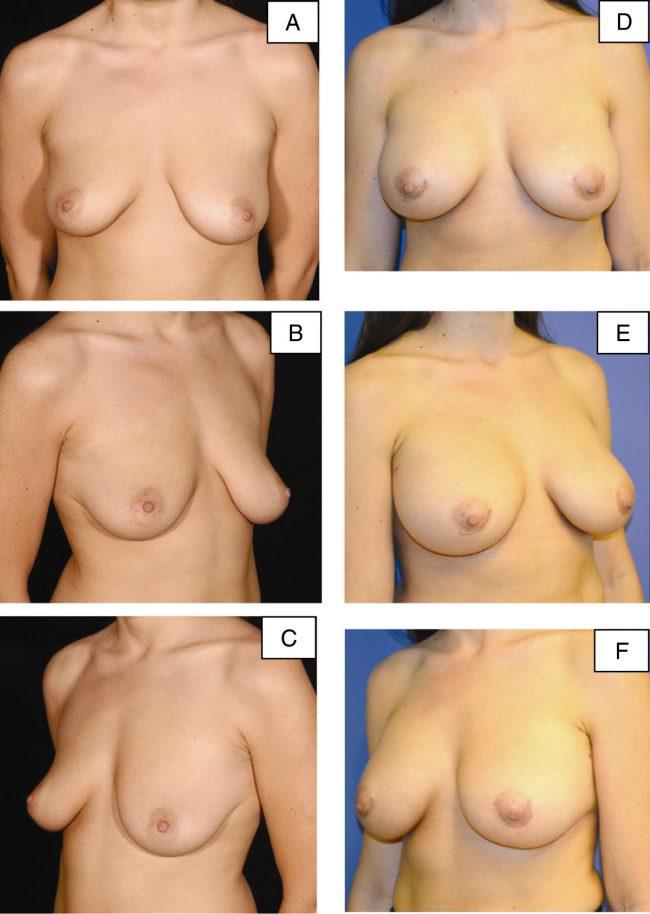 швы после операции на груди