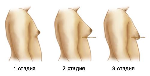 гинекомастия: стадии