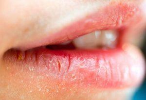 причины жжения губ