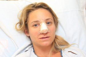 ринопластика: коррекция горбинки носа