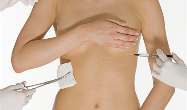 увеличение груди гиалуроновой кислотой