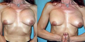 асимметрия груди после маммопластики