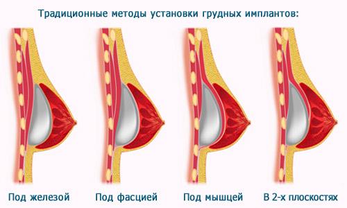 методы установки грудных имплантов