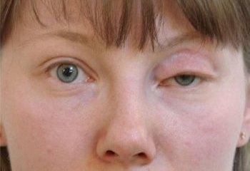 осложнения после блефаропластики - птоз