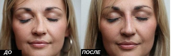 ринопластика: исправление кривизны носа