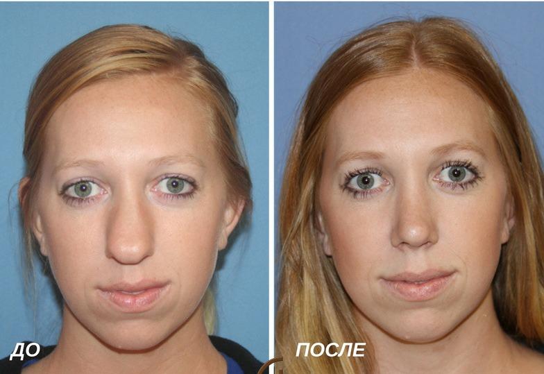 ринопластика: сужение спинки носа