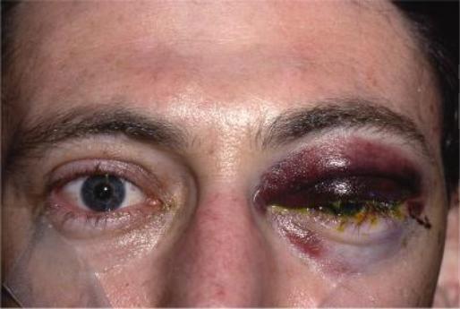 инфекция после блефаропластики