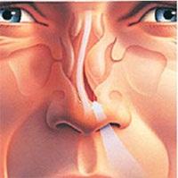 ринопластика: исправление искривленной перегородки носа