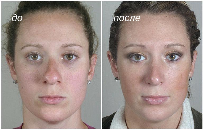уменьщение толстого кончика носа