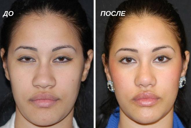 исправление широких крыльев носа