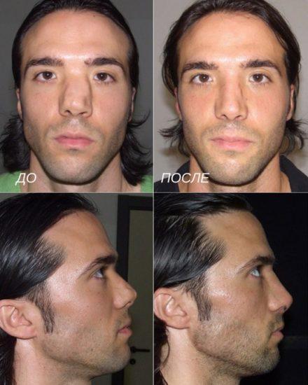 септопластика при травматическом искривлении перегородки носа