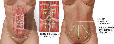 как проводиться операция по удалению избытка жира в области живота