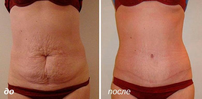 как избавиться от шрамов на животе