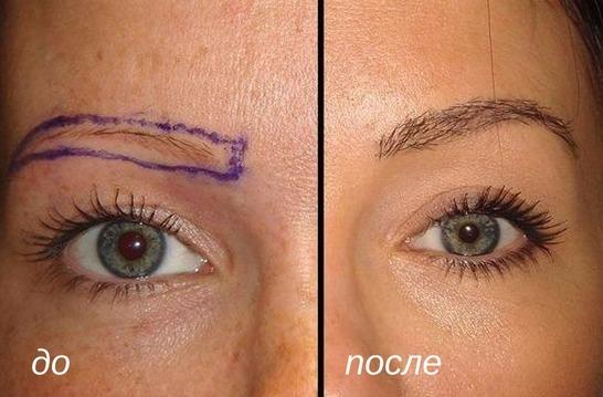 причины трансплантации волос