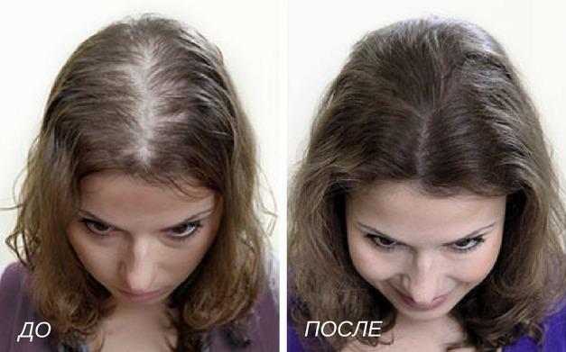аппаратная косметология увеличение густоты волос