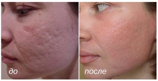 лечение рубцов и шрамов лазером