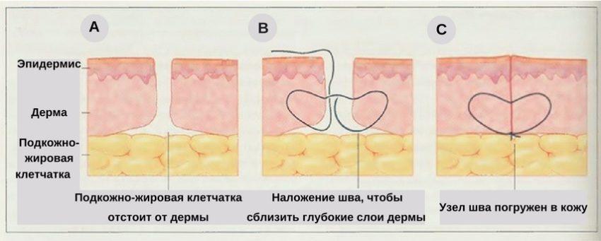 как проходит операция по удалению шрамов