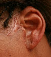 келоидный рубец после подтяжки лица