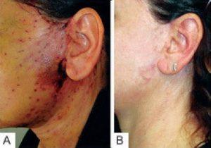 осложнения после подтяжки лица
