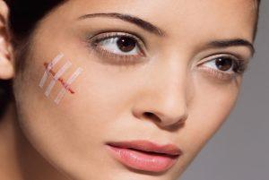 шрам на лице