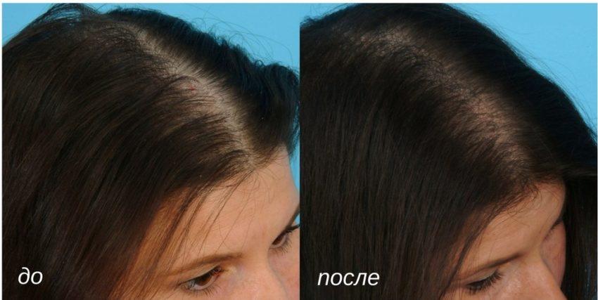 результат от процедуры мезотерапия волос