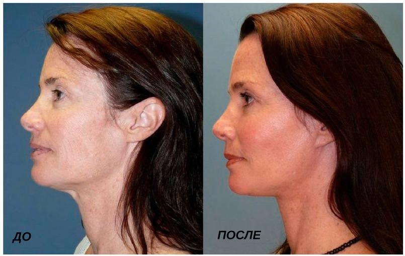 процедура по улучшению тонуса лица
