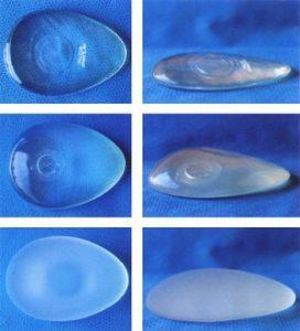 глютеопластика и ее проведение