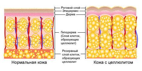 методы борьбы с целлюлитом