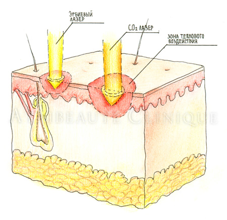 эрбиевый лазер