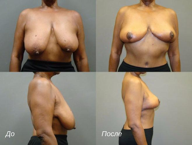 липосакция при ассиметрии груди